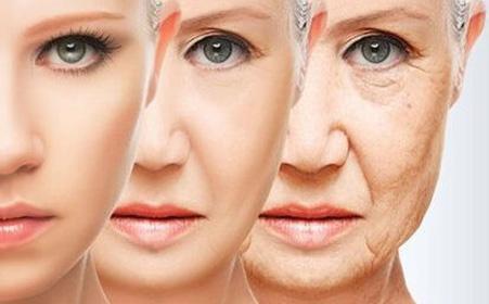 面部斑点形成原因
